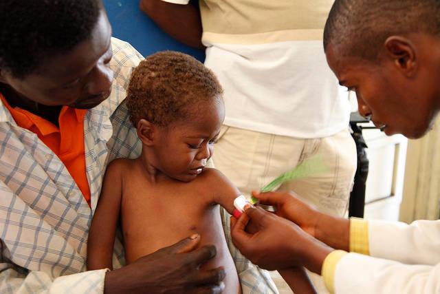 Hungertod Viele Kinder werden an den Folgen von Hunger sterben, sollte sich die humanitäre Hilfe in der Kasai-Region nicht deutlich verstärken.    Bild: © DFID - UK Department for International Development [CC BY-SA 2.0]  - Flickr