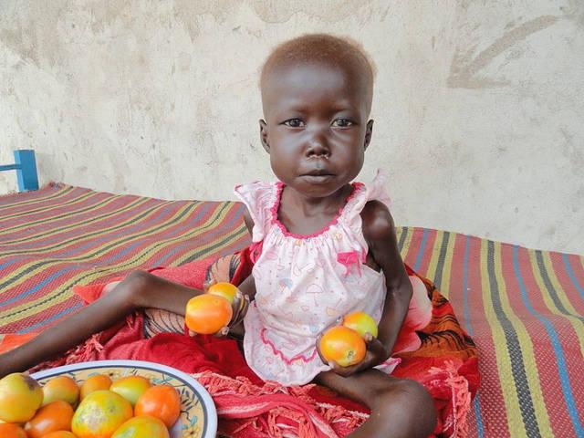 Vielen Kindern im Südsudan kann leider nicht geholfen werden    Bild: © Amy the nurse [CC BY-NC-ND 2.0]  - flickr