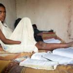 Der zwölfjährige Abdurrahim Ahmed Mohamed verlor seine rechte Hand und das Sehvermögen seines linken Auges, als er mit einer nicht explodierten Waffe spielte. | Bild (Ausschnitt): © United Nation Photos [CC BY. 2.0] - Flickr